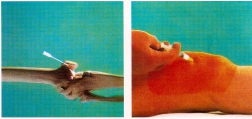 infiltração de ácido hialurônico em joelho
