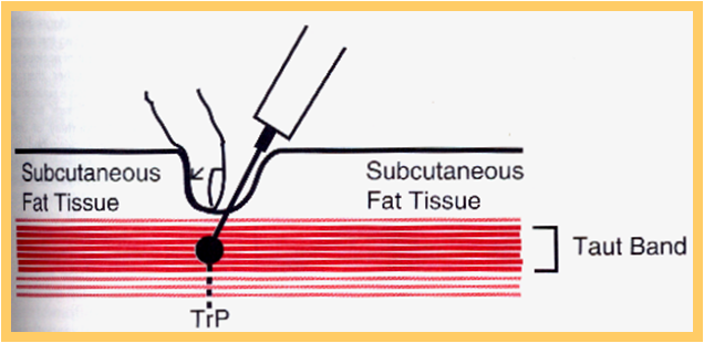 infiltração muscular de anestésico