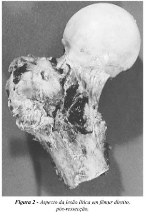 metástase em fêmur proximal