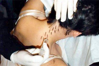 Infiltração de paravertebrais na cervicalgia