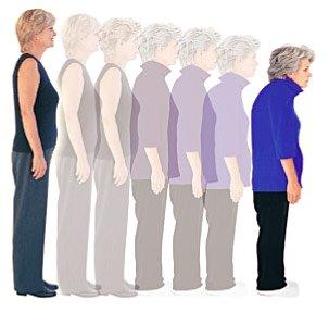 Progressão da Cifose na osteoporose