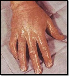 Distrofia Simpático Reflexa da Mão