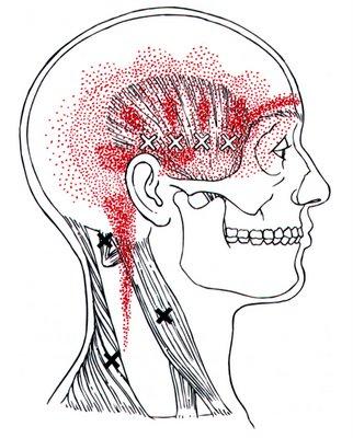 Músculos cervicais envolvidos na Cefaléia Cervicogênica