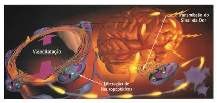 Vasodialtação das artérias extracranianas