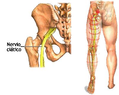 Compressão do Nervo Ciático