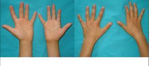 Atrofia de mão direita devido à lesão periférica de C2- C3 com perda de força.