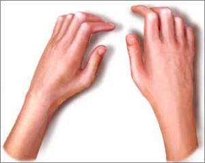 Esclerodactilia-dedos mais grossos, pele mais brilhante e limitação dos movimentos