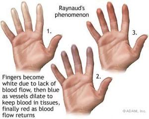Fases do Fenômeno de Raynaud:1-Palidez (branco), 2-Cianose (roxo) 3-Eritematoso (vermelho)