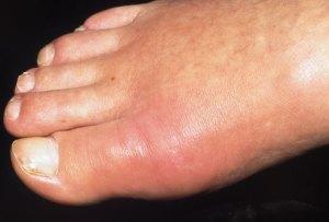 Gota em dedão do pé
