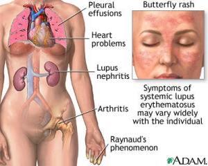 O lupus eritematoso sistêmico agride vários órgãos do nosso corpo.