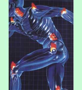 Articulações doloridas é uma das manifestações do reumatismo
