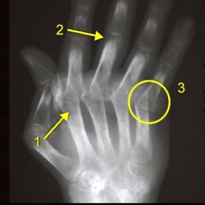 Artrite Reumatóide Severa 1-osteopenia justarticular 2-erosões periarticulares 3-subluxação metacarpofalangena