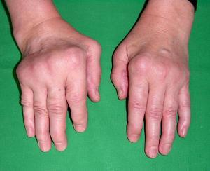 Deformidades em paciente jovem que podem levar à dificuldades para tarefas feitas pelas mãos
