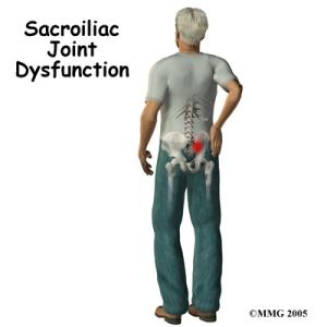 A lombalgia por inflamação da articulação sacroilíaca é comum